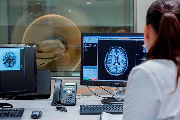 la neuroimagen es fundamental para detectar los primeros sntomas del alzheimer