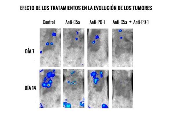 una nueva inmunoterapia combinada mejorara el tratamiento del cncer de pulmn