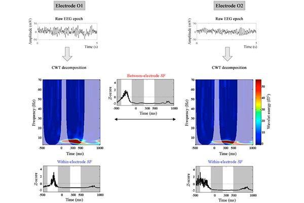 una prueba sencilla podra detectar el deterioro cognitivo leve que precede al alzhimer