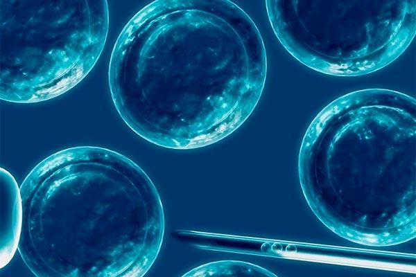 el trasplante autlogo de clulas madre es eficaz en la forma progresiva secundaria de la esclerosis mltiple