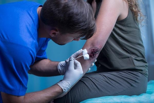 advierten del mal uso de la octenidina en las heridas profundas