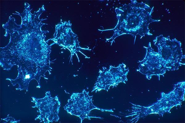 el gen brca tambin aumenta el riesgo de cncer en hombres