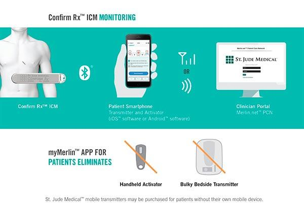 primer monitor cardiaco continuo compatible con el telefono movil