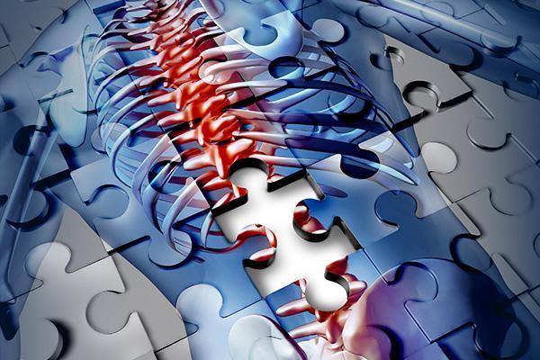 un anticuerpo monoclonal reduce el riesgo de fractura vertebral en la osteoporosis