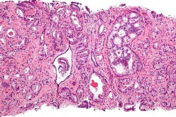 un nuevo test sanguineo 3 en 1 posibilitara la medicina de precision en el cancer de prostata