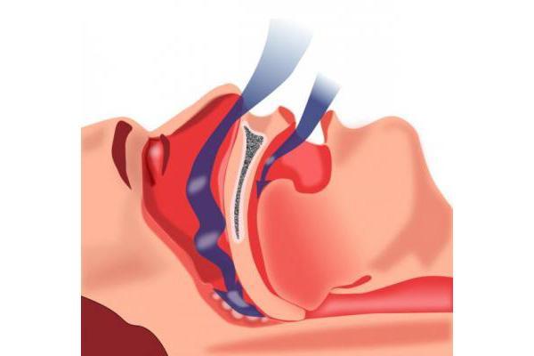 un parche desechable para diagnosticar fiablemente la apnea del sueo