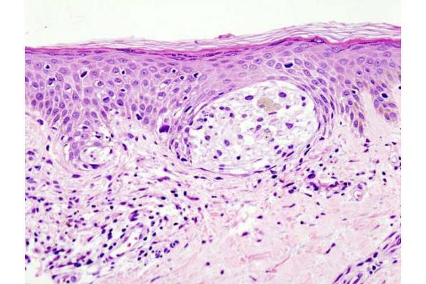 la tomografa podra predecir la respuesta temprana a la inmunoterapia en el melanoma