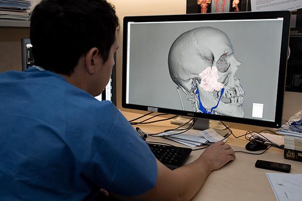 el hospital clnic planifica intervenciones neuroradiolgicas y minimizar riesgos con la impresin 3d