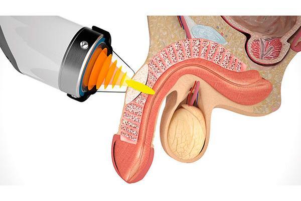 las ondas de choque mejoran a ms de la mitad de los pacientes con curvatura de pene