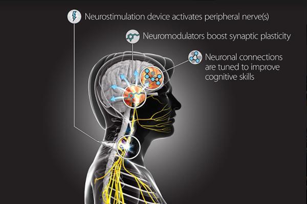 la terapia de neuroestimulacin demuestra su efectividad tras un accidentenbspcerebrovascular