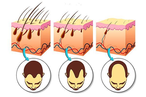 nuevo y prometedor enfoque para tratar la alopecia