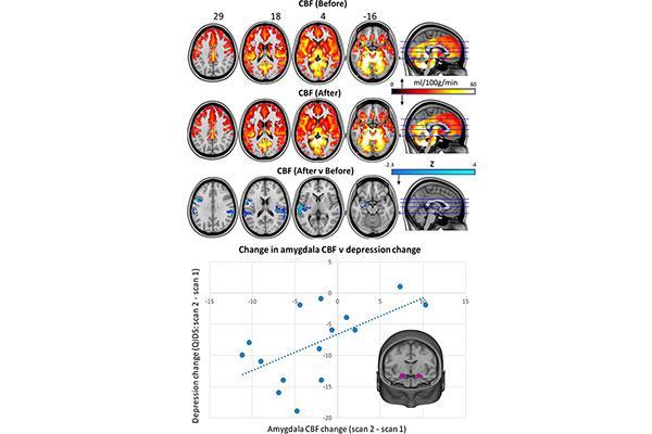 beneficio de la psilocibina en el tratamiento de la depresin