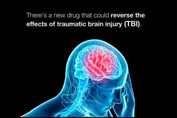 un frmaco revierte la prdida de memoria causada por el traumatismo cerebral