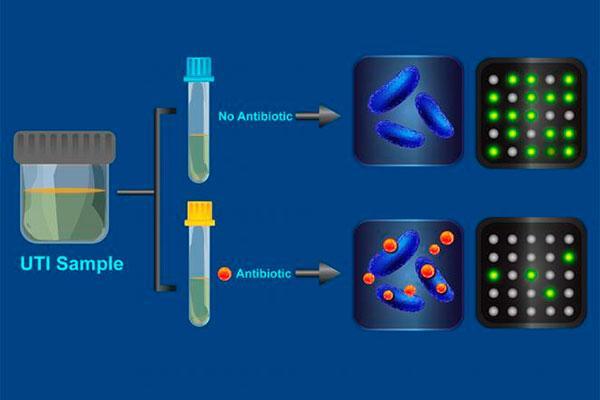un test revela la resistencia a antibiticos en media hora