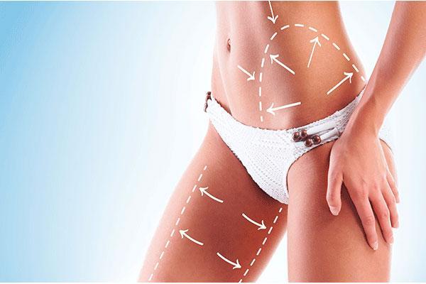 liposuccion producto estrella de la cirugia estetica y plastica