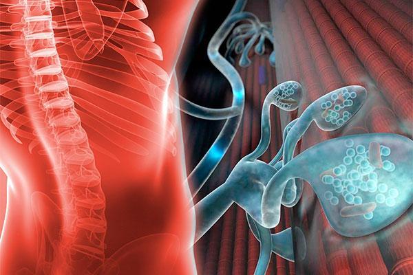 ms de la mitad de los afectados por una enfermedad neuromuscular presenta un grado iii de dependencia