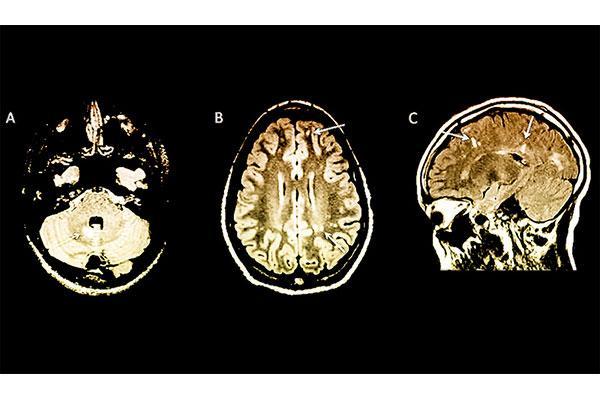 la resonancia magntica ayuda a predecir el riesgo de esclerosis mltiple en nios