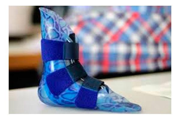 los beneficios de la impresin 3d para la ortopedia personalizada