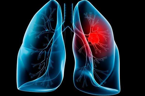 la ciruga agresiva es el mejor tratamiento para el cncer de pulmn no avanzado