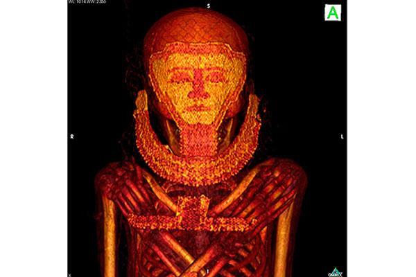 un tac a cuatro momias egipcias identifica los casos ms antiguos de cncer de mama