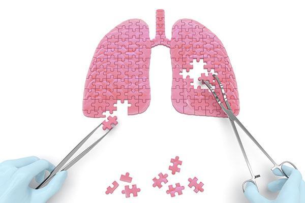 disnea-en-el-mercado-de-medicamentos-respiratorios