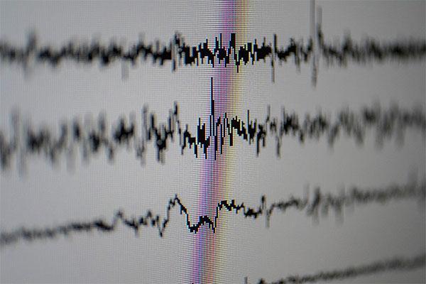 el electroencefalograma de alta densidad aporta mayor detalle que el convencional
