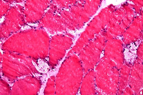 sanofigenzyme y semi impulsan un proyecto de investigacin sobre la enfermedad de pompe