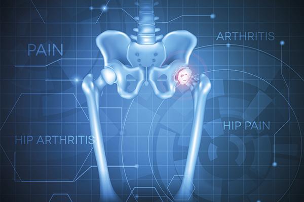 avances en el tratamiento del dolor en la artrosis de rodilla y cadera