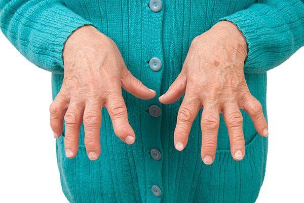 baricitinib supone un cambio en el paradigma del tratamiento de la ar en muchos aspectos