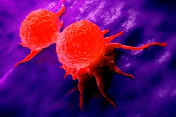 la histologa de la mama y de nbsplos ganglios linfticos predice el riesgo de metstasis