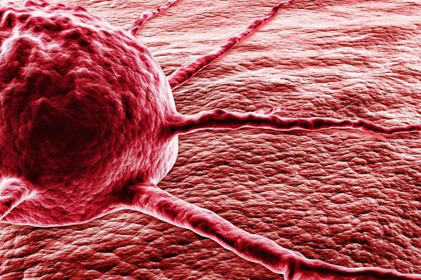 un mecanosensor mejorar la eficacia de la inmunoterapia celular