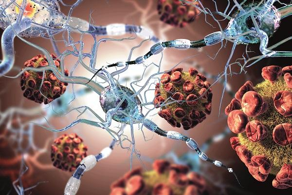 avances en la esclerosis mltiple con relapso