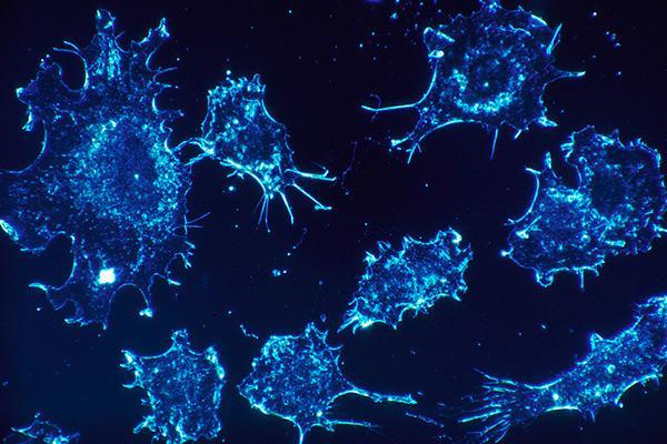 dos frmacos experimentales bloquean el crecimiento tumoral sin afectar al tejido sano