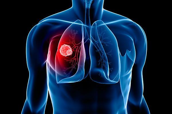 una nueva estrategia induce la regresin del cncer de pulmn en ratones