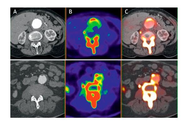 la tomografia con fluoruro de sodio predice la progresion del aneurisma aortico abdominal