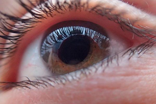 avances en el tratamiento del glaucoma de ngulo abierto