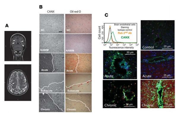 descubren una molecula clave en la transmigracion de los linfocitos t al sistema nervioso central