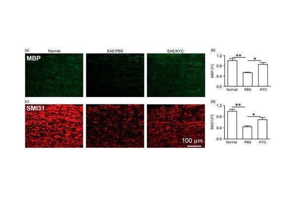 un inhibidor de la mieloperoxidasa podra ofrecer beneficio en la esclerosis mltiple