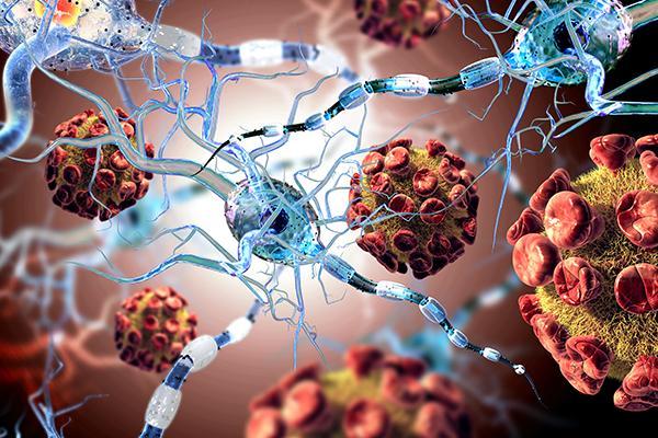 siponimod reduce el riesgo de progresin de la discapacidad en la esclerosis mltiple secundaria progresiva