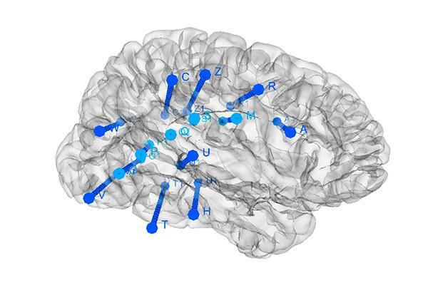el cerebro cambia su actividad antes de una crisis epilptica