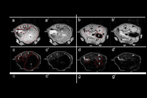 resonancia magnética de próstata con contrastop