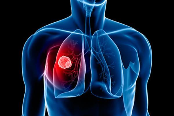 un regimen de inmunoterapia previene el relapso tras la cirugia en el cancer de pulmon