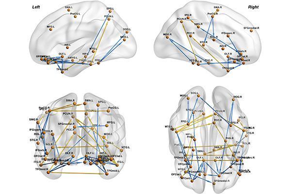 encuentran variaciones en la conectividad efectiva del cerebro en pacientes con depresin