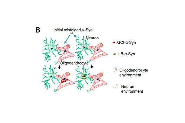 las-sinucleopatias-d