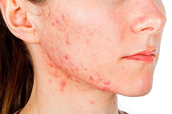 aumenta la prevalencia del acne en mujeres adultas