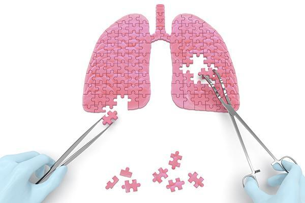 avanza-el-desarrollo-de-pamrevlumab-en-la-fibrosis-pulmonar-idiopatic
