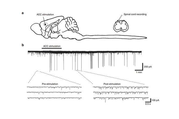 nuevo papel del lobulo frontal en el dolor cronico