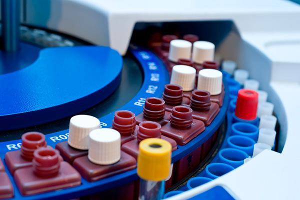 una-prueba-de-sangre-puede-detectar-el-cancer-de-pulmon-en-estadio-t