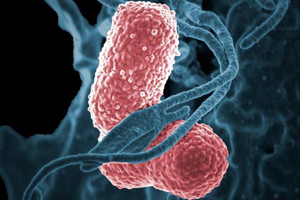 un biomarcador distingue las cepas clasicas de klebsiella pneumoniae de las hipervirulentas