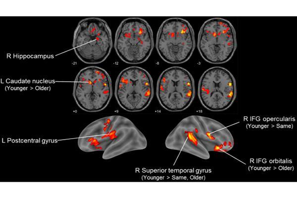 la edad subjetiva se correlaciona con la edad estimada del cerebro